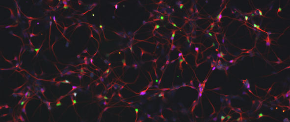 Human embryonic stem cell derived motor neuron