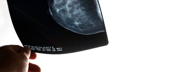 Hand holding mammogram xray