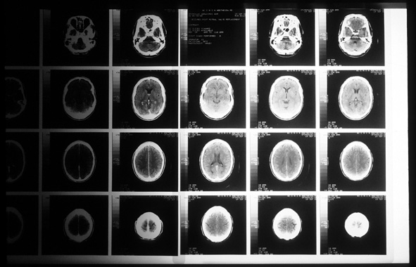 photo of CAT scans on a lightbox