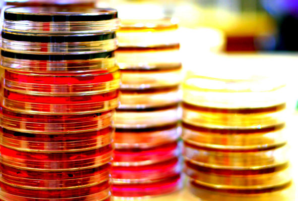 three stacks of petri dishes